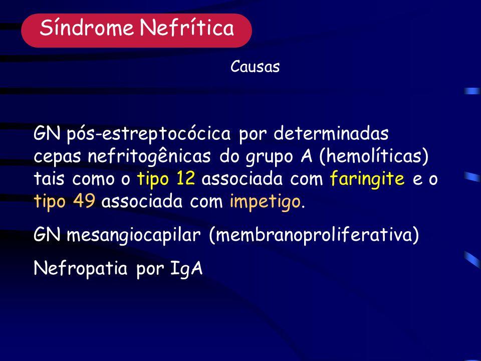 GN pós-estreptocócica por determinadas cepas nefritogênicas do grupo A (hemolíticas) tais como o tipo 12 associada com faringite e o tipo 49 associada com impetigo.