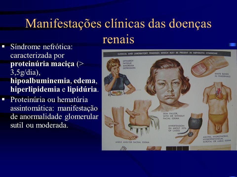 Manifestações clínicas das doenças renais Síndrome nefrótica: caracterizada por proteinúria maciça (> 3,5g/dia), hipoalbuminemia, edema, hiperlipidemia e lipidúria.