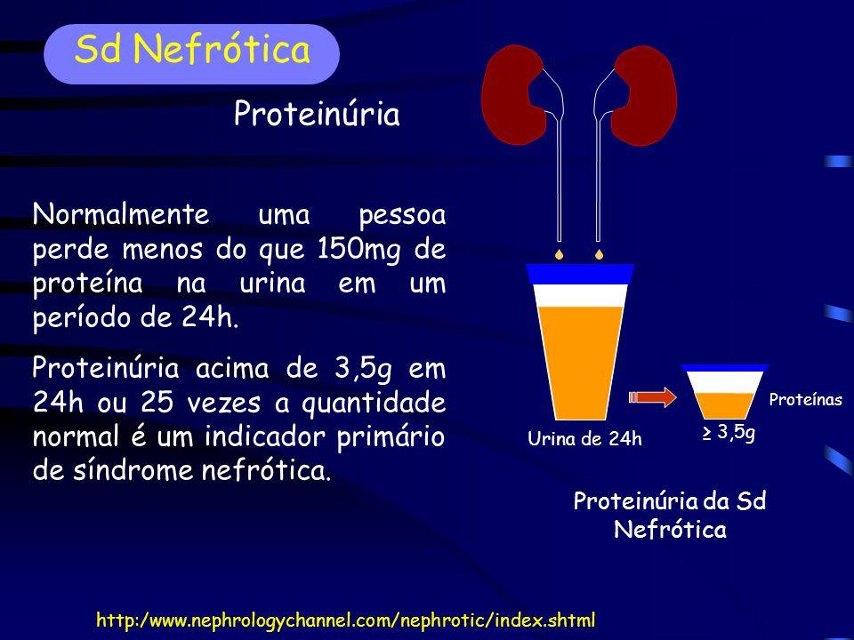 Normalmente uma pessoa perde menos do que 150mg de proteína na urina em um período de 24h.