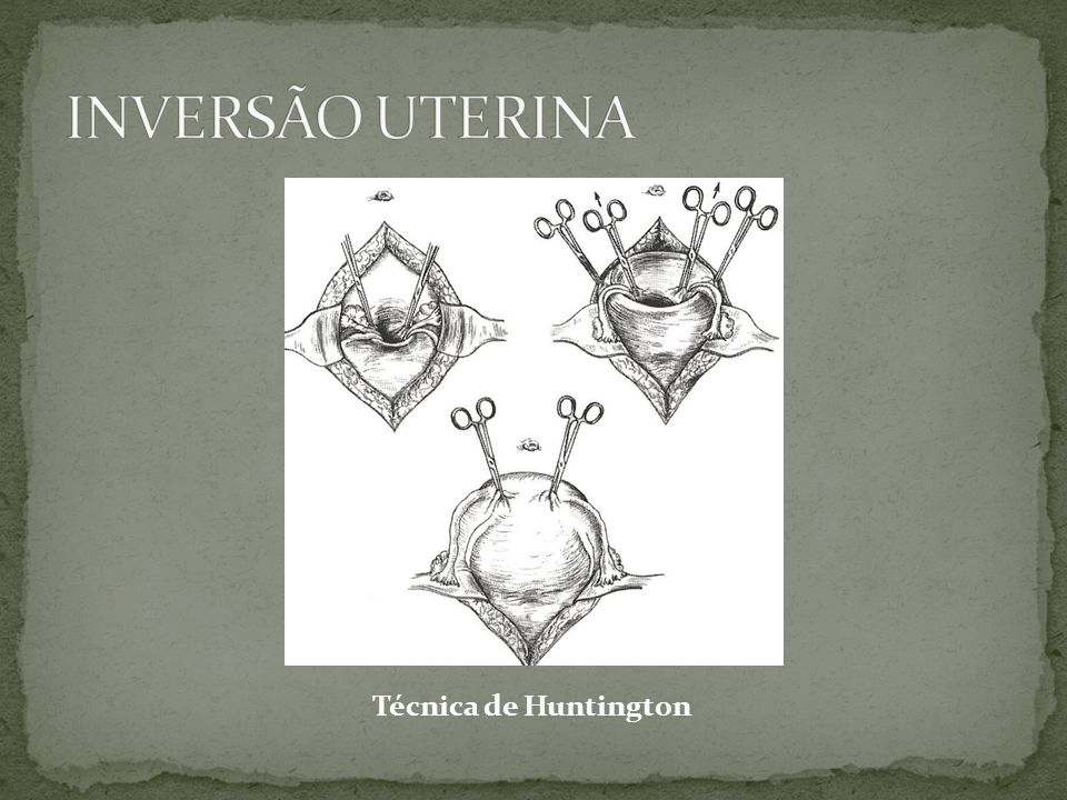 Técnica de Huntington