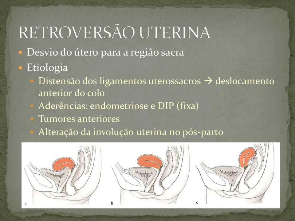 Desvio do útero para a região sacra Etiologia Distensão dos ligamentos uterossacros deslocamento anterior do colo Aderências: endometriose e DIP (fixa