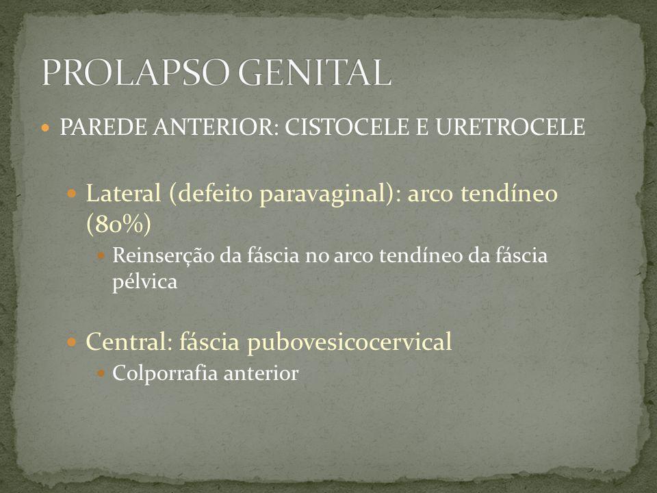 PAREDE ANTERIOR: CISTOCELE E URETROCELE Lateral (defeito paravaginal): arco tendíneo (80%) Reinserção da fáscia no arco tendíneo da fáscia pélvica Cen