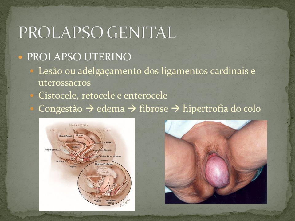 PROLAPSO UTERINO Lesão ou adelgaçamento dos ligamentos cardinais e uterossacros Cistocele, retocele e enterocele Congestão edema fibrose hipertrofia d