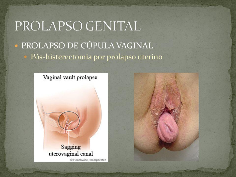 PROLAPSO DE CÚPULA VAGINAL Pós-histerectomia por prolapso uterino