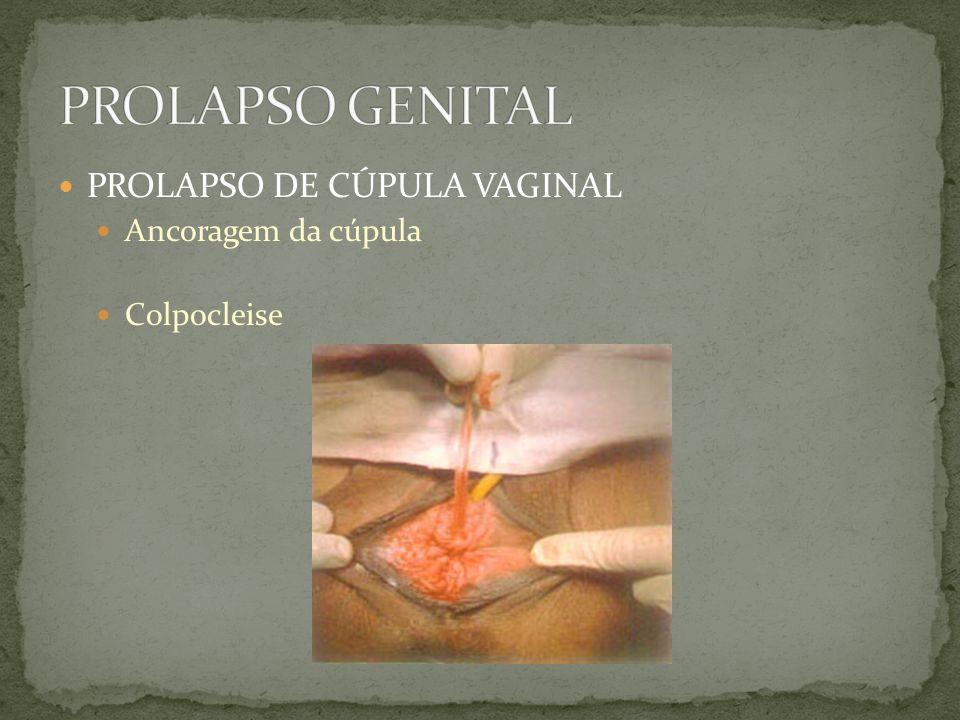 PROLAPSO DE CÚPULA VAGINAL Ancoragem da cúpula Colpocleise