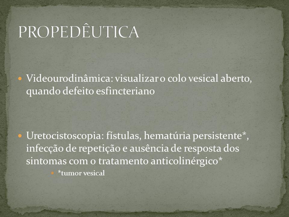 Videourodinâmica: visualizar o colo vesical aberto, quando defeito esfincteriano Uretocistoscopia: fístulas, hematúria persistente*, infecção de repet