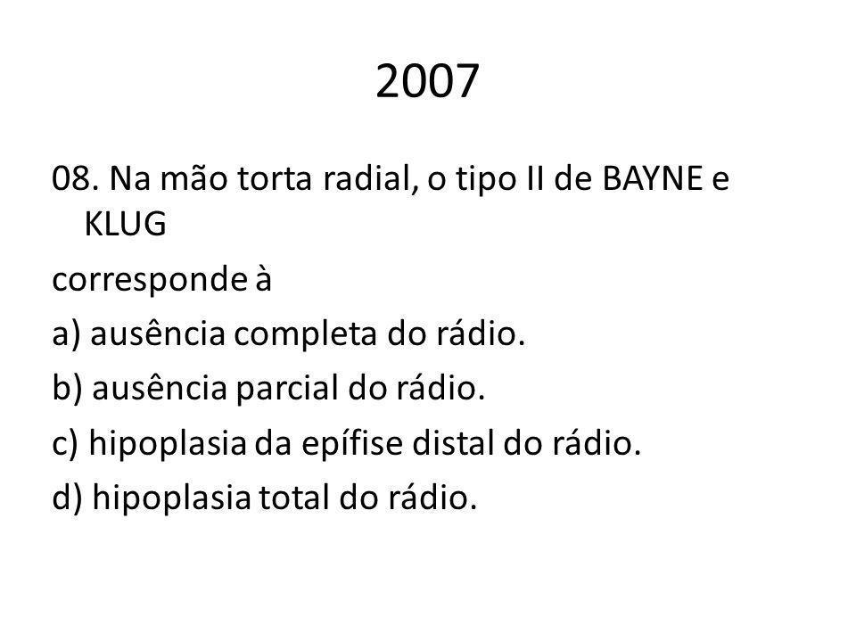 2007 08. Na mão torta radial, o tipo II de BAYNE e KLUG corresponde à a) ausência completa do rádio. b) ausência parcial do rádio. c) hipoplasia da ep