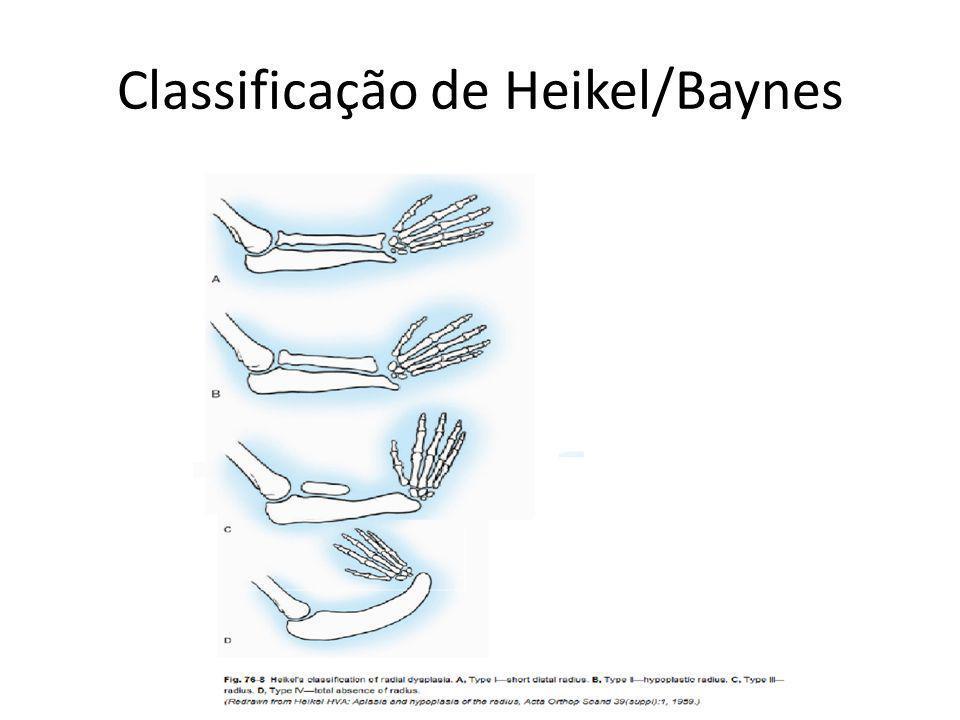 Classificação de Heikel/Baynes