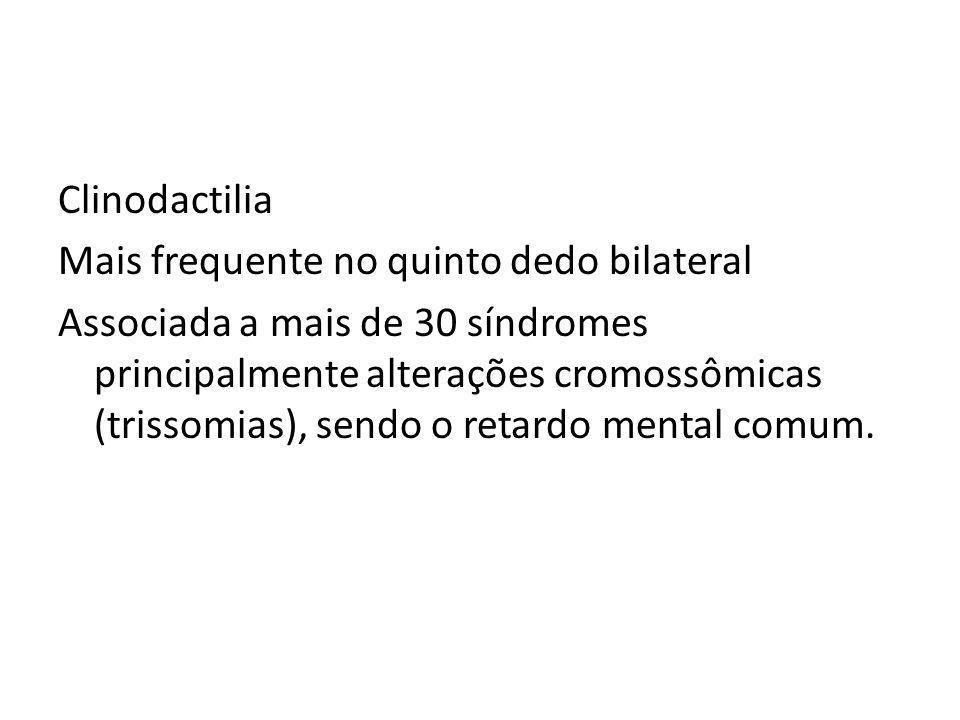 Clinodactilia Mais frequente no quinto dedo bilateral Associada a mais de 30 síndromes principalmente alterações cromossômicas (trissomias), sendo o r