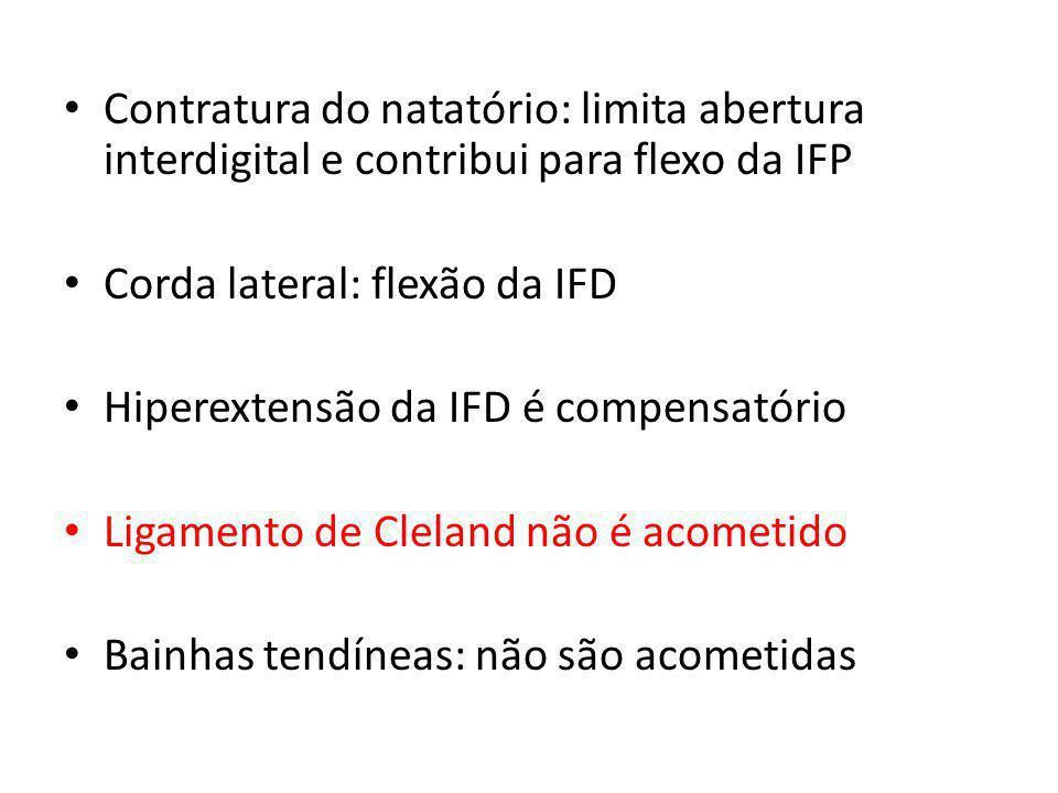 Contratura do natatório: limita abertura interdigital e contribui para flexo da IFP Corda lateral: flexão da IFD Hiperextensão da IFD é compensatório