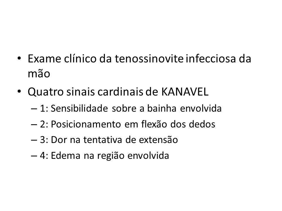 Exame clínico da tenossinovite infecciosa da mão Quatro sinais cardinais de KANAVEL – 1: Sensibilidade sobre a bainha envolvida – 2: Posicionamento em