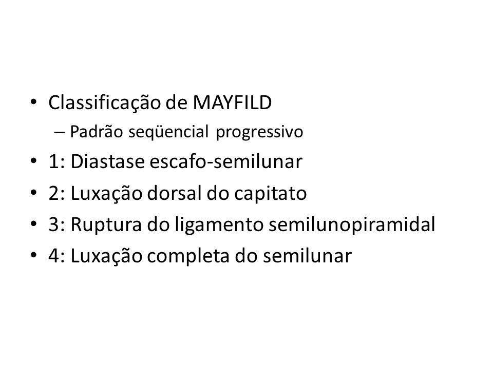 Classificação de MAYFILD – Padrão seqüencial progressivo 1: Diastase escafo-semilunar 2: Luxação dorsal do capitato 3: Ruptura do ligamento semilunopi