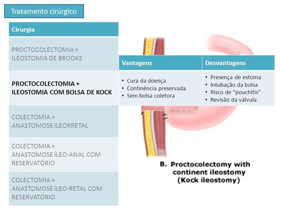 Tratamento cirúrgico Cirurgia PROCTOCOLECTOMIA + ILEOSTOMIA DE BROOKE PROCTOCOLECTOMIA + ILEOSTOMIA COM BOLSA DE KOCK COLECTOMIA + ANASTOMOSE ILEORRET