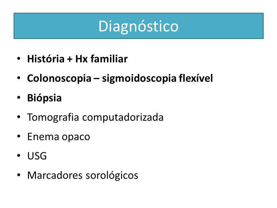 Tratamento cirúrgico Cirurgia PROCTOCOLECTOMIA + ILEOSTOMIA DE BROOKE PROCTOCOLECTOMIA + ILEOSTOMIA COM BOLSA DE KOCK COLECTOMIA + ANASTOMOSE ILEORRETAL COLECTOMIA + ANASTOMOSE ÍLEO-ANAL COM RESERVATÓRIO COLECTOMIA + ANASTOMOSE ÍLEO-RETAL COM RESERVATÓRIO