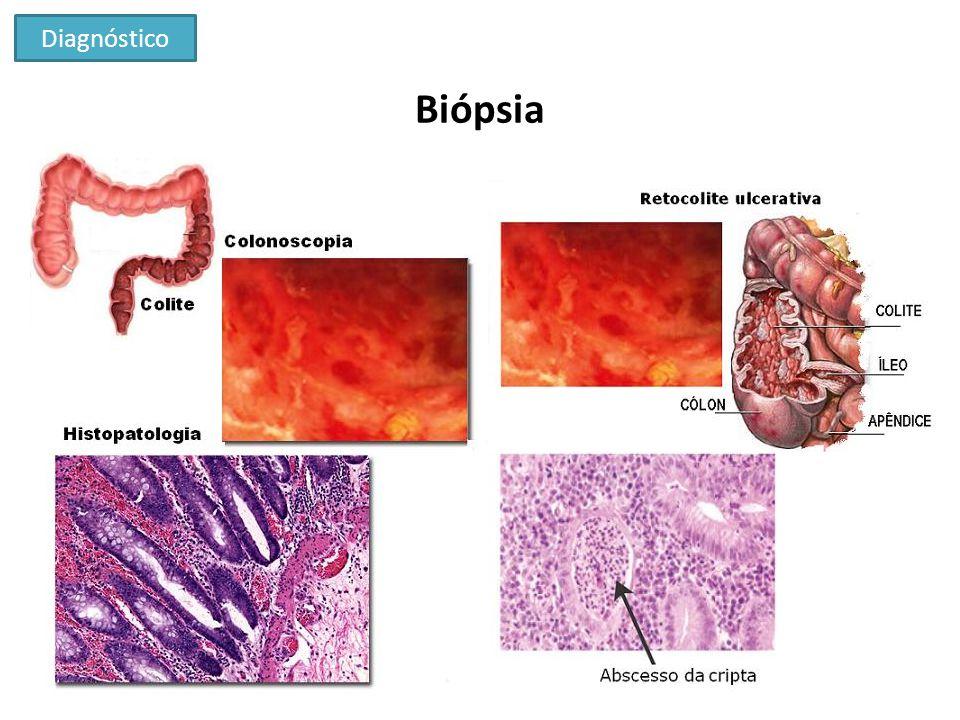 Tomografia computadorizada Diagnóstico UpToDate - Courtesy of Jonathan Kruskal, MD, PhD