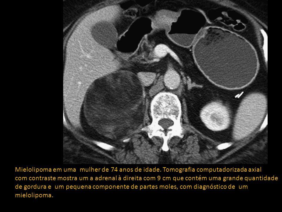 Tipos de tumores Tumores primários da cortical Adenoma Carcinoma adreno-cortical Mielolipomas* Tumores da medular Feocromocitoma Neuroblastoma Outros tumores primários Leiomiomas Tumores primários da cortical Adenoma Carcinoma adreno-cortical Mielolipomas* Tumores da medular Feocromocitoma Neuroblastoma Outros tumores primários Leiomiomas Linfomas Metastases Outras lesões Cistos Hiperplasia adrenal