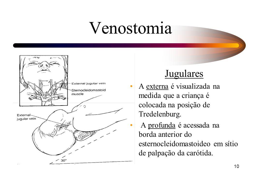 10 Venostomia Jugulares A externa é visualizada na medida que a criança é colocada na posição de Tredelenburg. A profunda é acessada na borda anterior