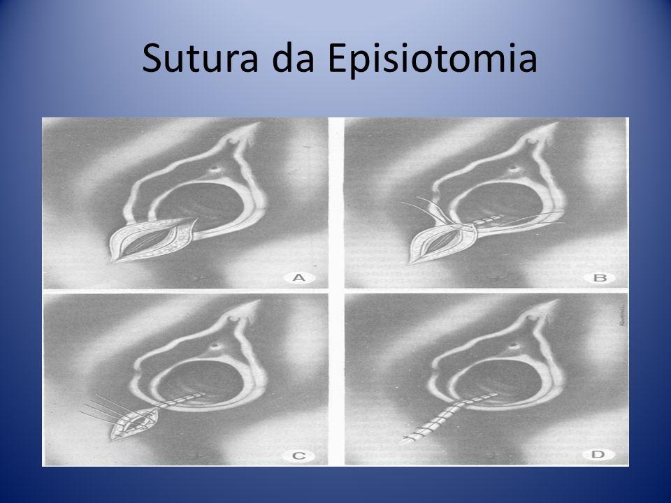 Sutura da Episiotomia