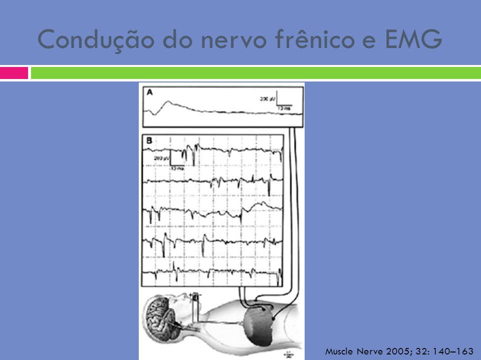 Condução do nervo frênico e EMG Muscle Nerve 2005; 32: 140–163