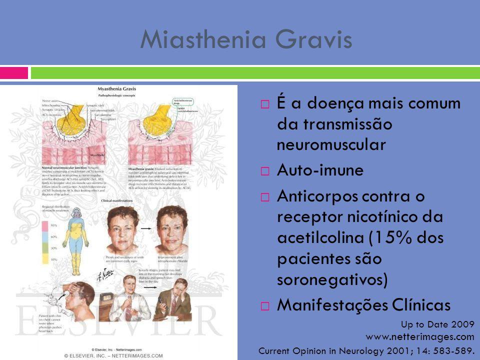 Miasthenia Gravis É a doença mais comum da transmissão neuromuscular Auto-imune Anticorpos contra o receptor nicotínico da acetilcolina (15% dos pacie