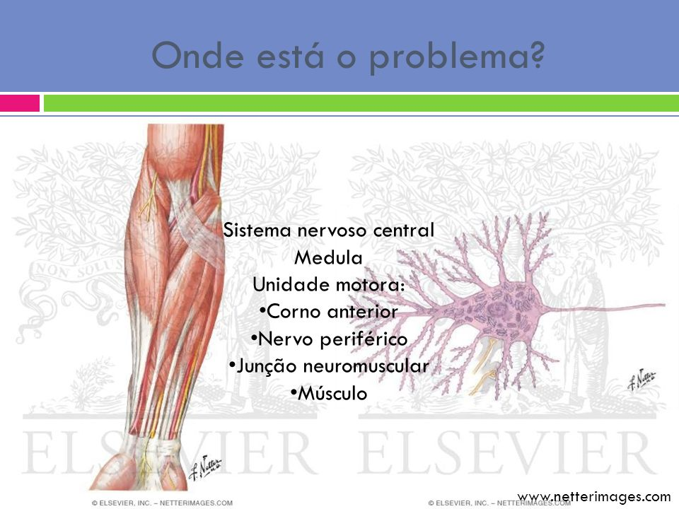 Onde está o problema? Sistema nervoso central Medula Unidade motora: Corno anterior Nervo periférico Junção neuromuscular Músculo www.netterimages.com