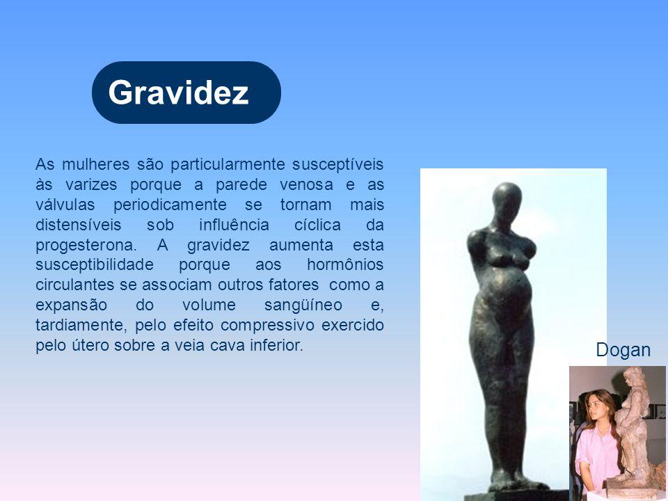 Dogan Gravidez As mulheres são particularmente susceptíveis às varizes porque a parede venosa e as válvulas periodicamente se tornam mais distensíveis