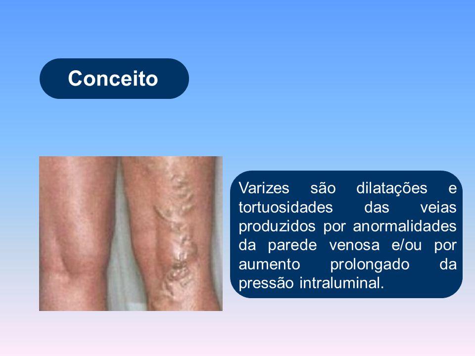Conceito Varizes são dilatações e tortuosidades das veias produzidos por anormalidades da parede venosa e/ou por aumento prolongado da pressão intralu