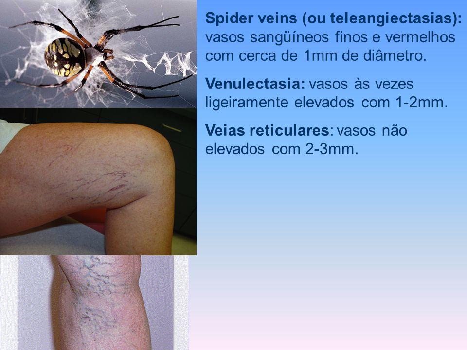 Spider veins (ou teleangiectasias): vasos sangüíneos finos e vermelhos com cerca de 1mm de diâmetro. Venulectasia: vasos às vezes ligeiramente elevado