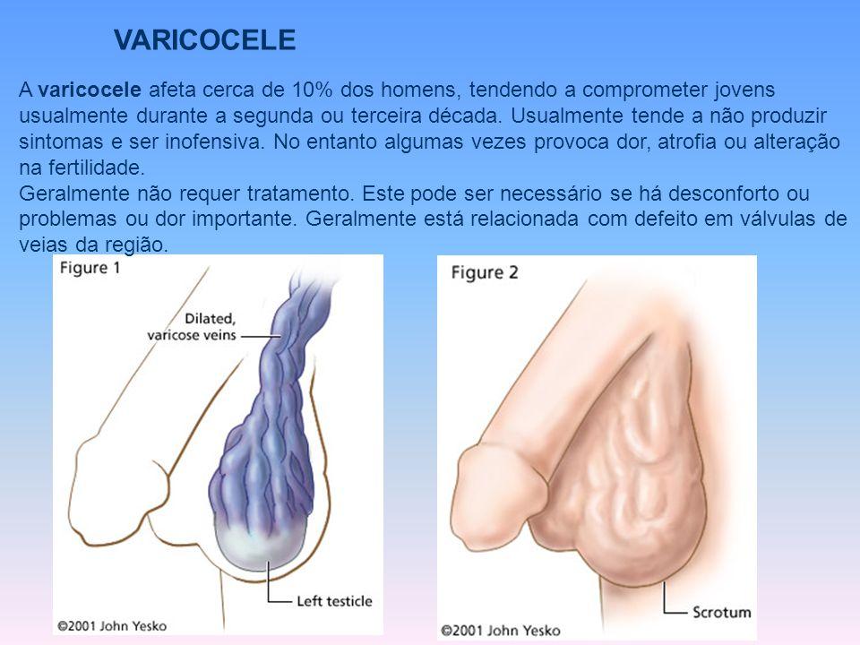 A varicocele afeta cerca de 10% dos homens, tendendo a comprometer jovens usualmente durante a segunda ou terceira década. Usualmente tende a não prod