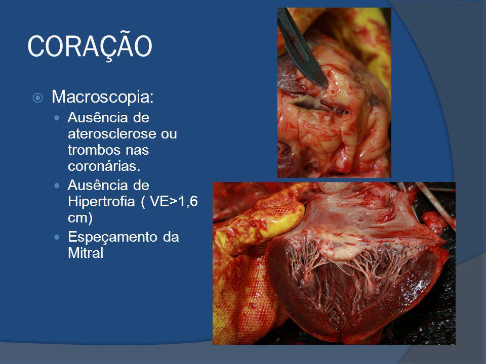 CORAÇÃO Macroscopia: Ausência de aterosclerose ou trombos nas coronárias. Ausência de Hipertrofia ( VE>1,6 cm) Espeçamento da Mitral