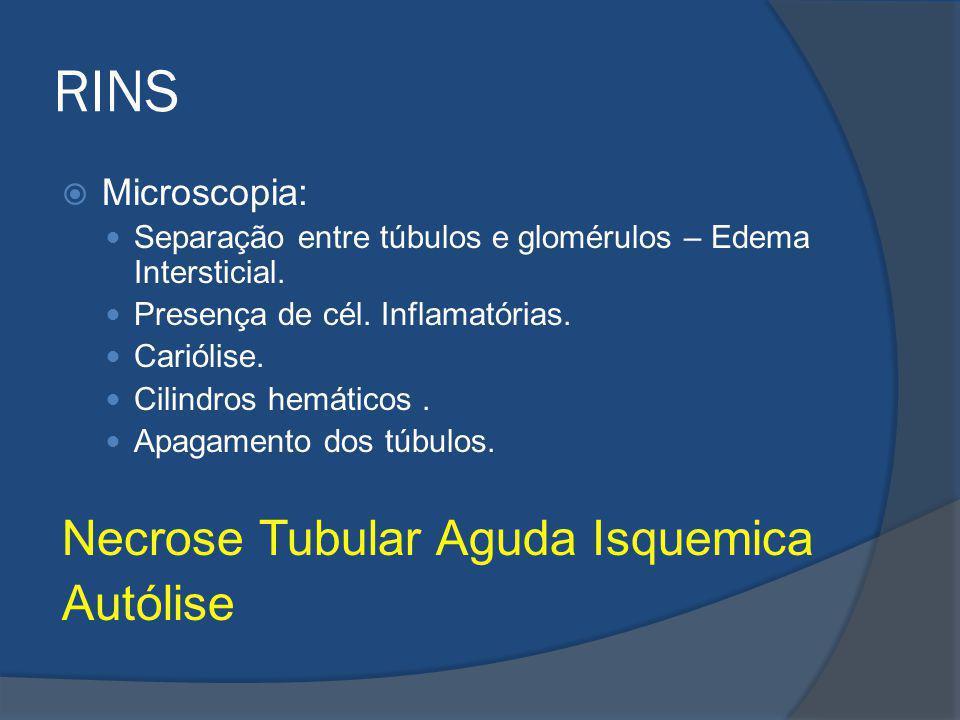 RINS Microscopia: Separação entre túbulos e glomérulos – Edema Intersticial. Presença de cél. Inflamatórias. Cariólise. Cilindros hemáticos. Apagament