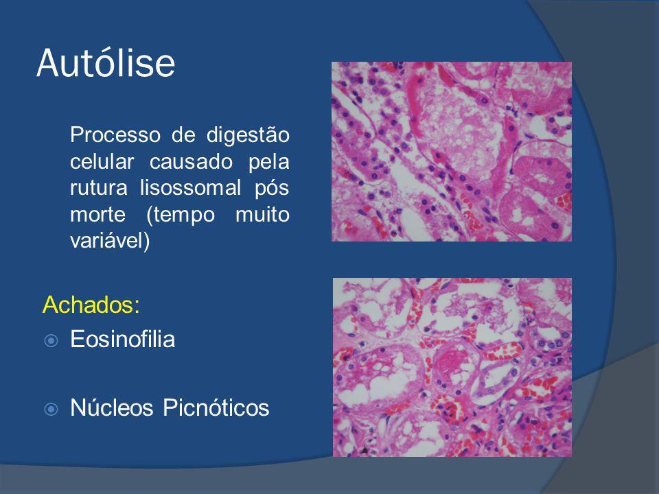 Autólise Processo de digestão celular causado pela rutura lisossomal pós morte (tempo muito variável) Achados: Eosinofilia Núcleos Picnóticos