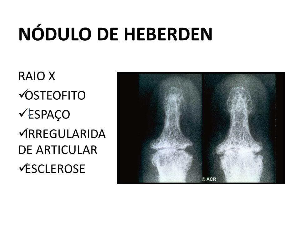 NÓDULO DE HEBERDEN RAIO X OSTEOFITO ESPAÇO IRREGULARIDA DE ARTICULAR ESCLEROSE