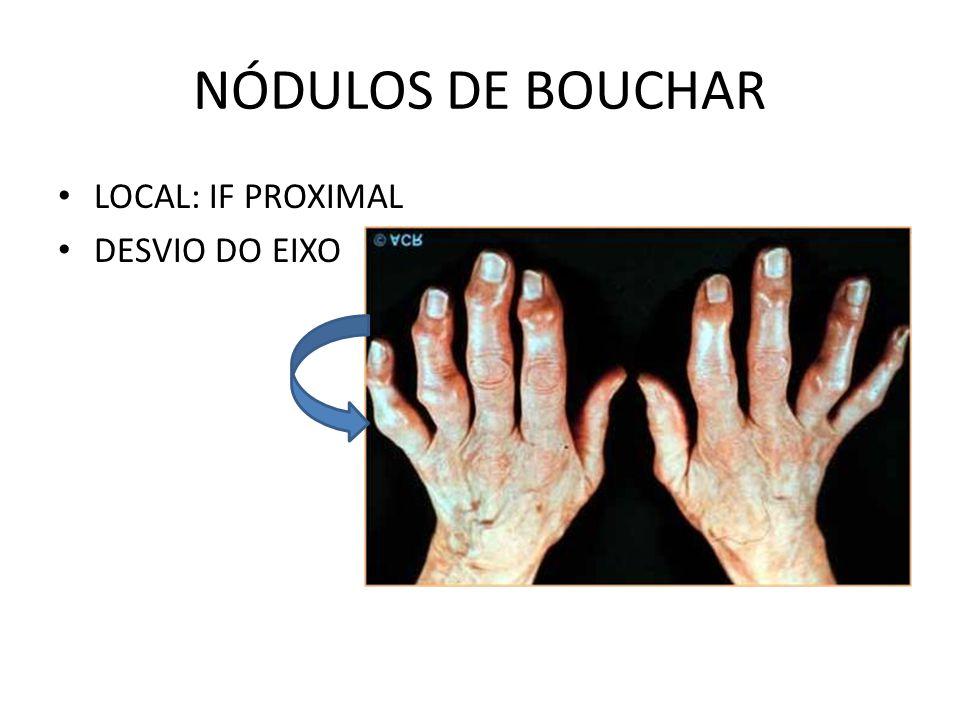 NÓDULOS DE BOUCHAR LOCAL: IF PROXIMAL DESVIO DO EIXO