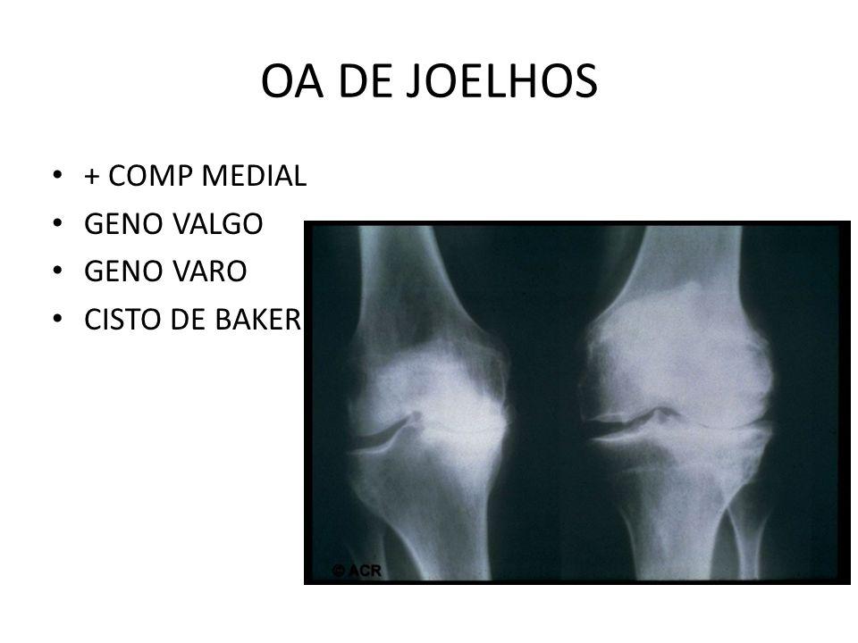 OA DE JOELHOS + COMP MEDIAL GENO VALGO GENO VARO CISTO DE BAKER
