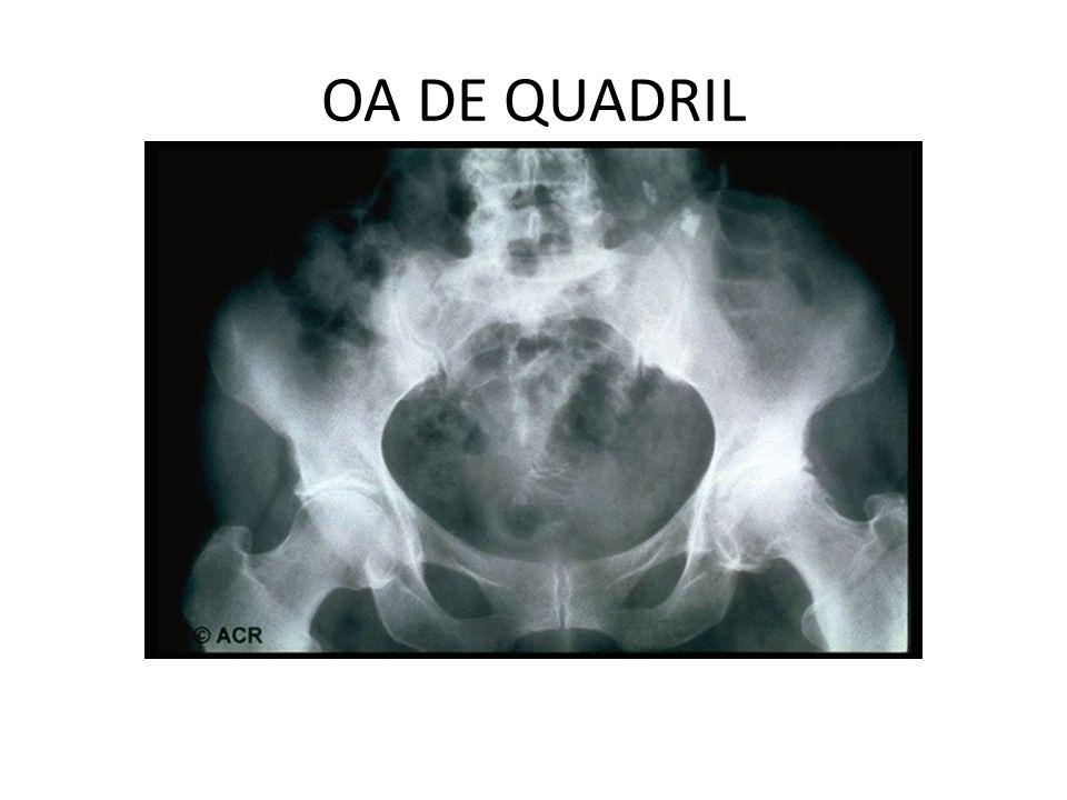 OA DE QUADRIL