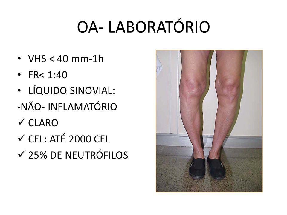 RAIO X OSTEOFITOS ESPAÇO ARTICULAR ESCLEROSE SUB- CONDRAL DESALINHAMENTO