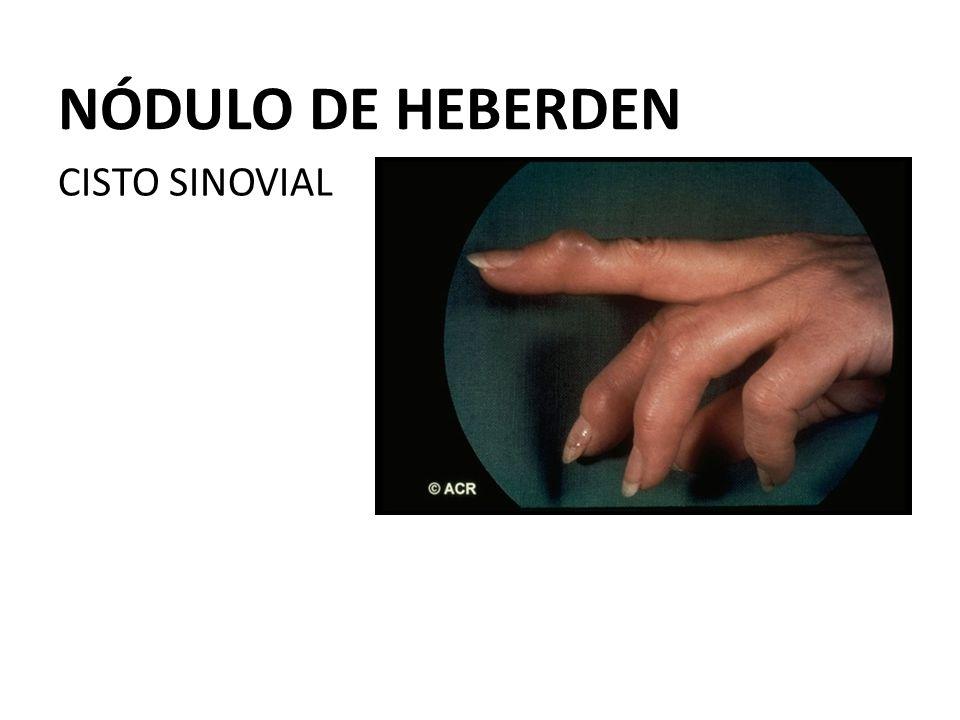 NÓDULO DE HEBERDEN CISTO SINOVIAL