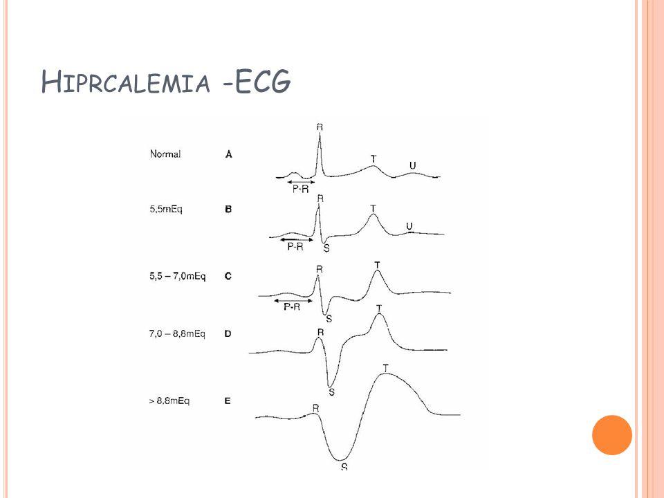 H IPRCALEMIA -ECG