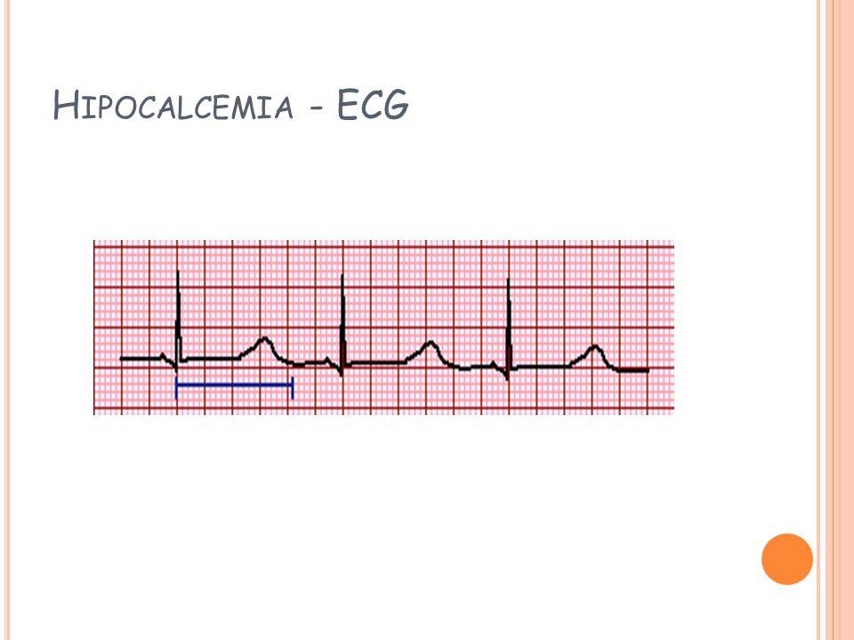 H IPOCALCEMIA - ECG
