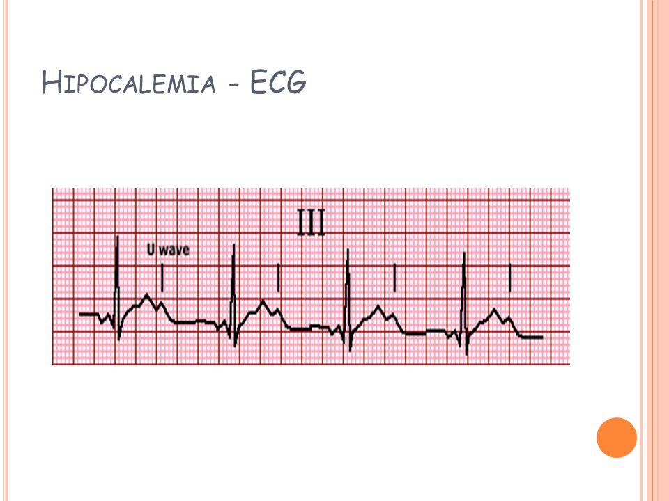 H IPOCALEMIA - ECG