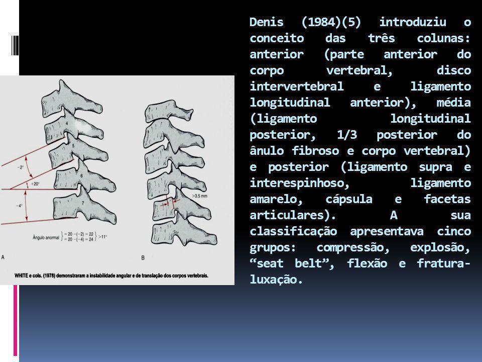 Denis (1984)(5) introduziu o conceito das três colunas: anterior (parte anterior do corpo vertebral, disco intervertebral e ligamento longitudinal ant