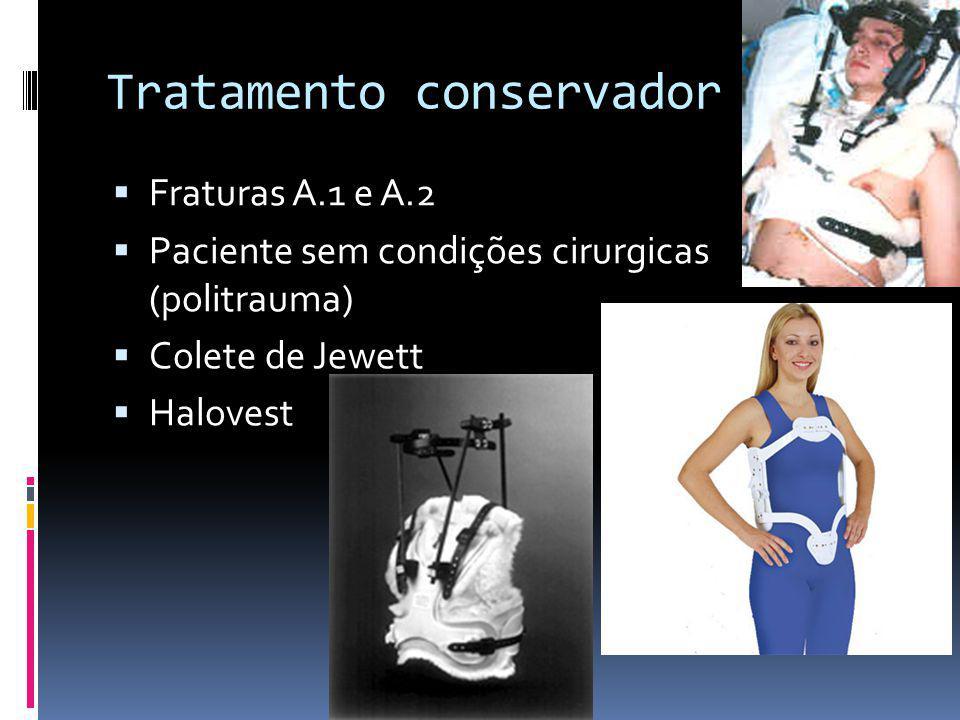 Tratamento conservador Fraturas A.1 e A.2 Paciente sem condições cirurgicas (politrauma) Colete de Jewett Halovest