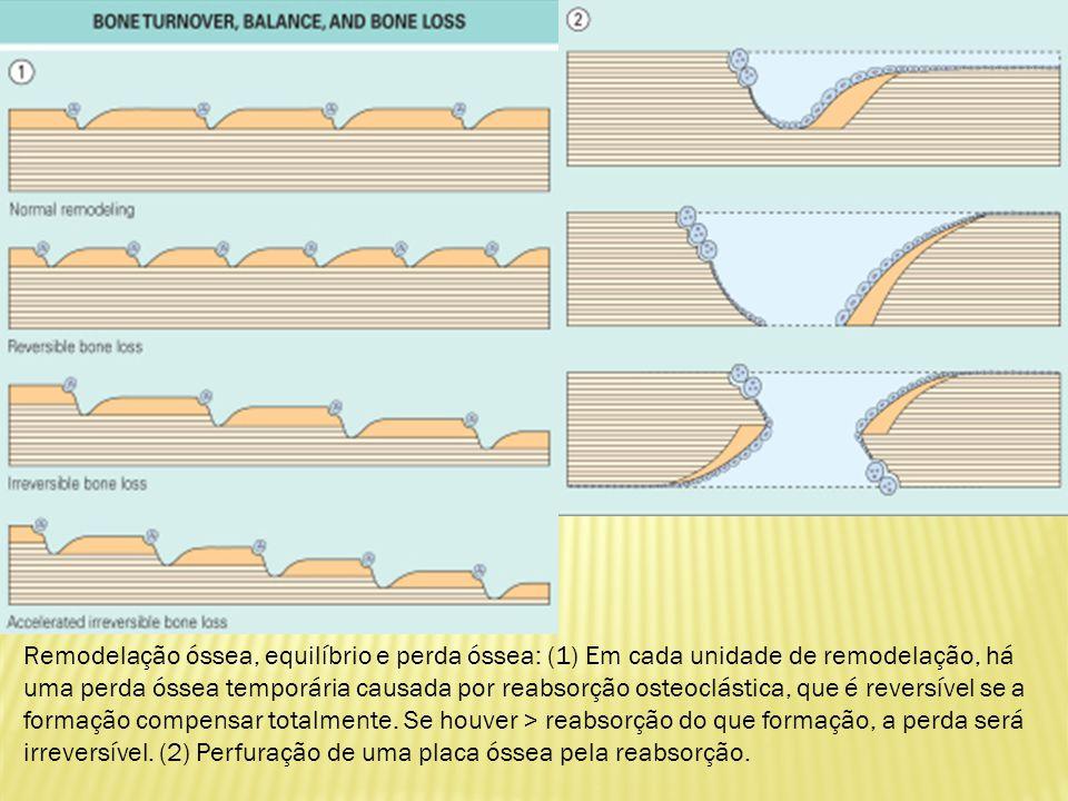 Osso trabecular sem carga em indivíduos mais jovens é formado de placas trabecular uniformes semelhante a estrutura do favo de mel.