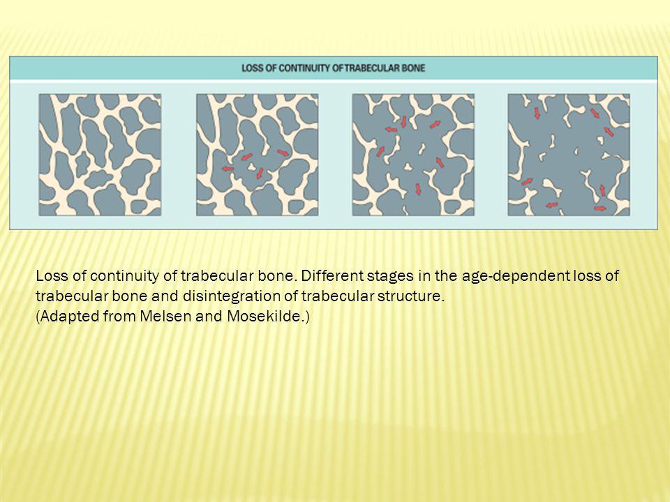 Efeito primário: Efeito primário: aumenta absorção de cálcio no intestino – Aumento no de bombas de cálcio na membrana basolateral – Calbindina Ossos: Ossos: – Osteoblastos – receptores – sinalização parácrina – ativação dos osteoclastos – reabsorção óssea – Osteólise osteocítica – Também estimula formação - mineralização