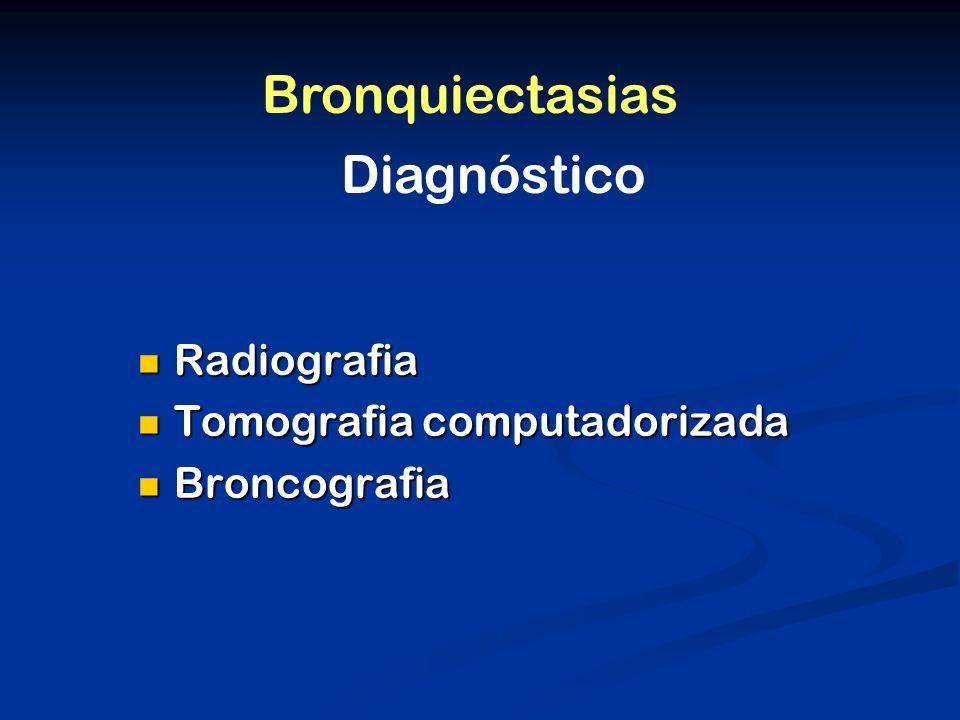 Radiografia Radiografia Tomografia computadorizada Tomografia computadorizada Broncografia Broncografia Diagnóstico Bronquiectasias