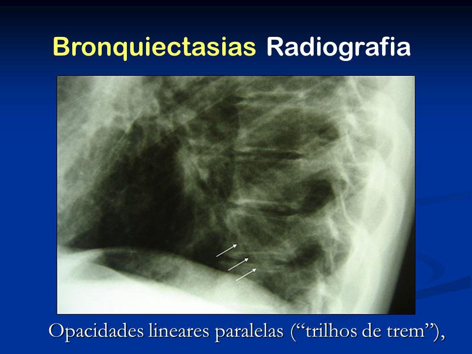 Opacidades lineares paralelas (trilhos de trem), Diagnóstico Bronquiectasias Radiografia