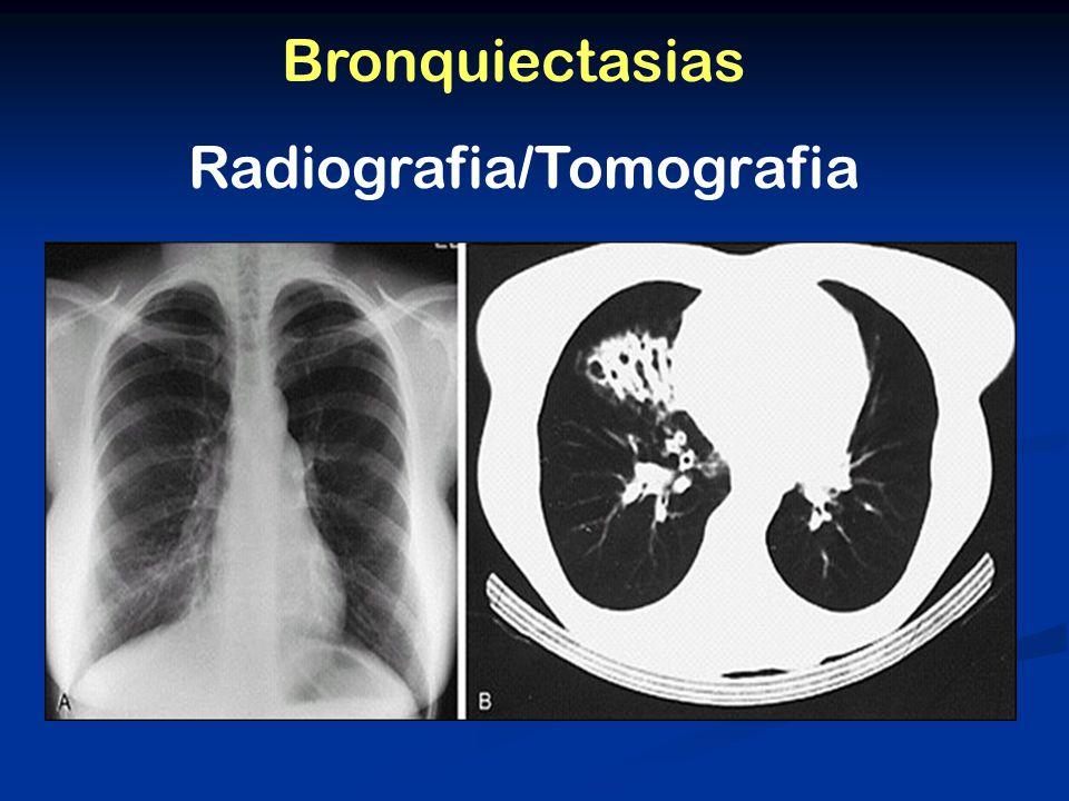 Bronquiectasias Radiografia/Tomografia