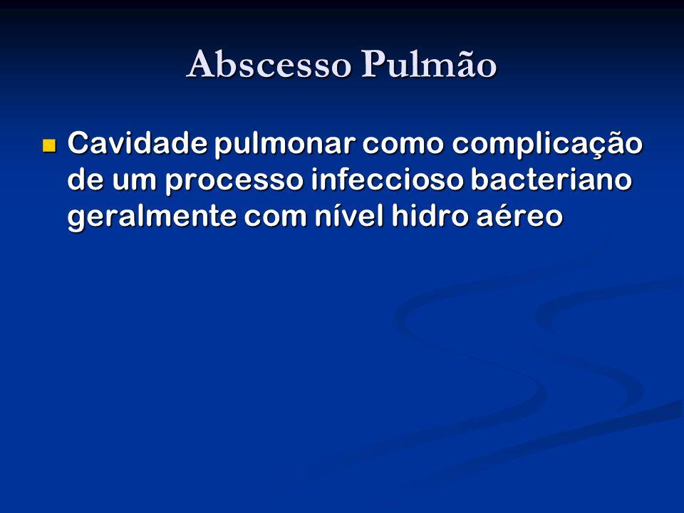 Abscesso Pulmão Cavidade pulmonar como complicação de um processo infeccioso bacteriano geralmente com nível hidro aéreo Cavidade pulmonar como complicação de um processo infeccioso bacteriano geralmente com nível hidro aéreo
