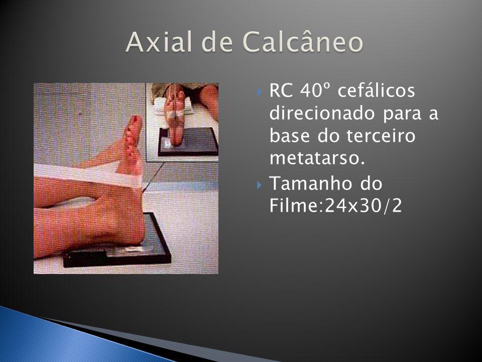 RC 40º cefálicos direcionado para a base do terceiro metatarso. Tamanho do Filme:24x30/2
